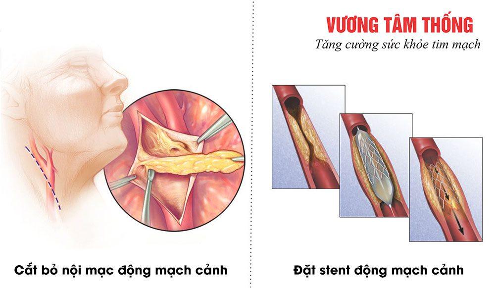 Phẫu thuật điều trị xơ vữa động mạch cảnh
